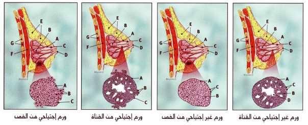سرطان الثدي ومراحله